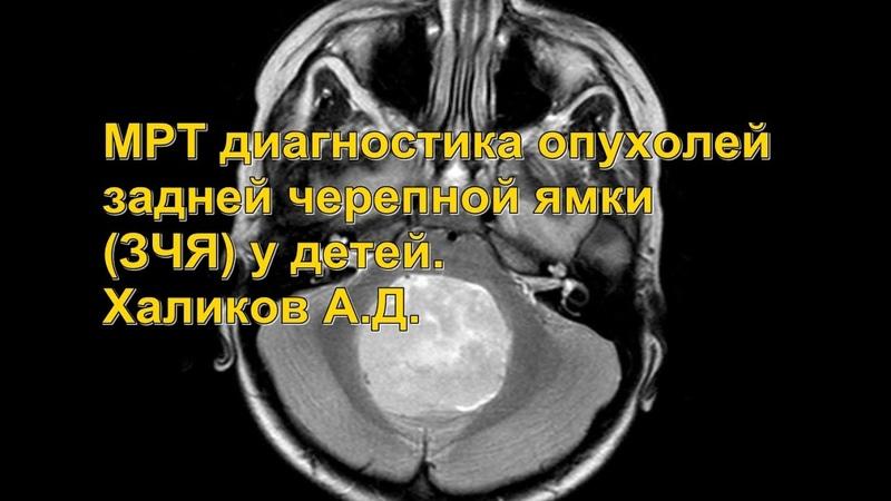 МРТ диагностика опухолей задней черепной ямки у детей Халиков А Д